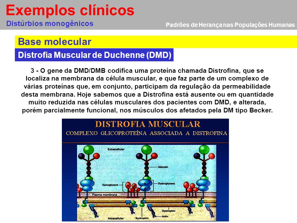 Exemplos clínicos Base molecular Distrofia Muscular de Duchenne (DMD)
