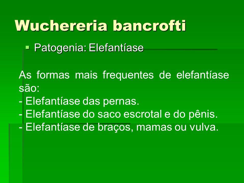 Wuchereria bancrofti Patogenia: Elefantíase