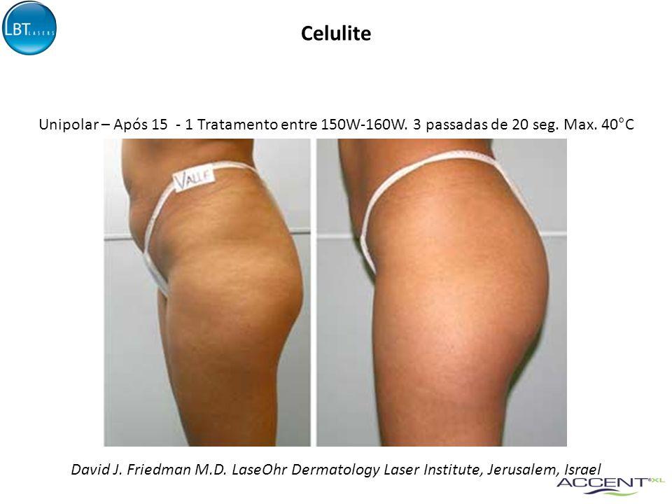 Celulite Unipolar – Após 15 - 1 Tratamento entre 150W-160W. 3 passadas de 20 seg. Max. 40°C.