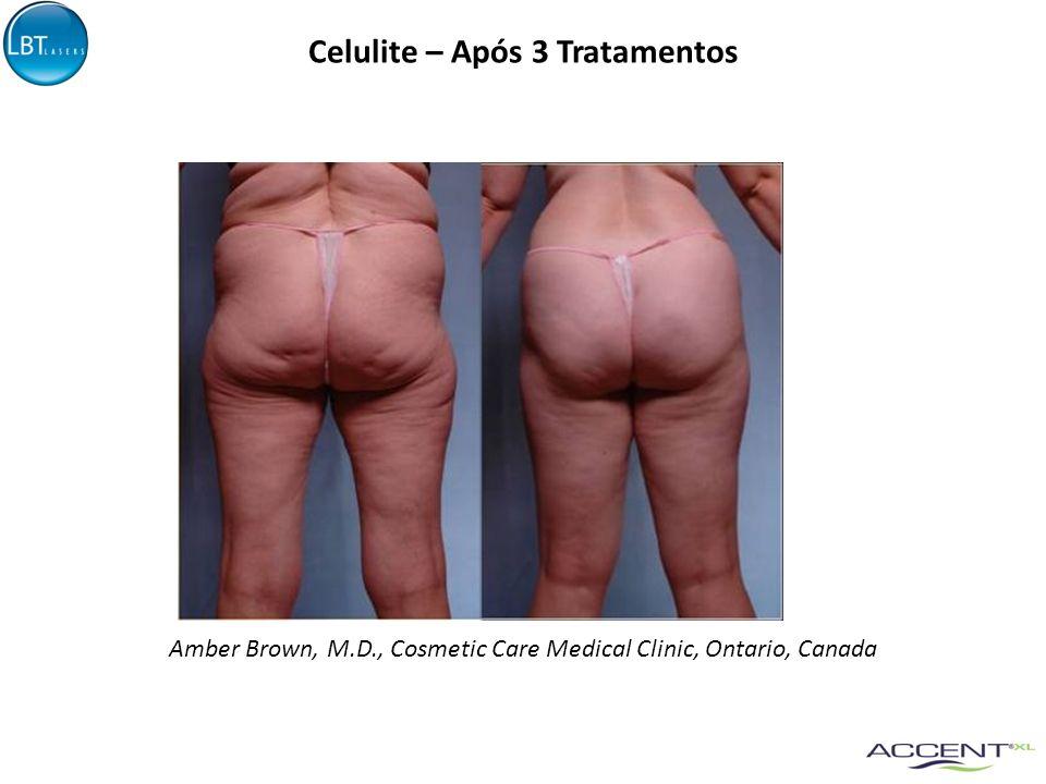 Celulite – Após 3 Tratamentos