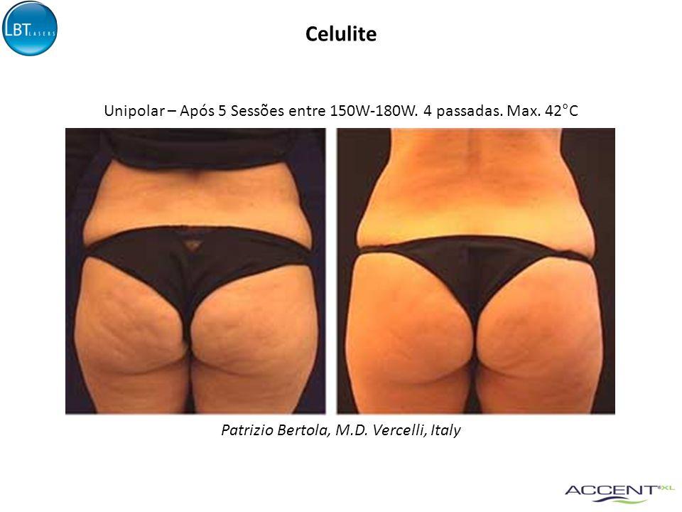 Celulite Unipolar – Após 5 Sessões entre 150W-180W.