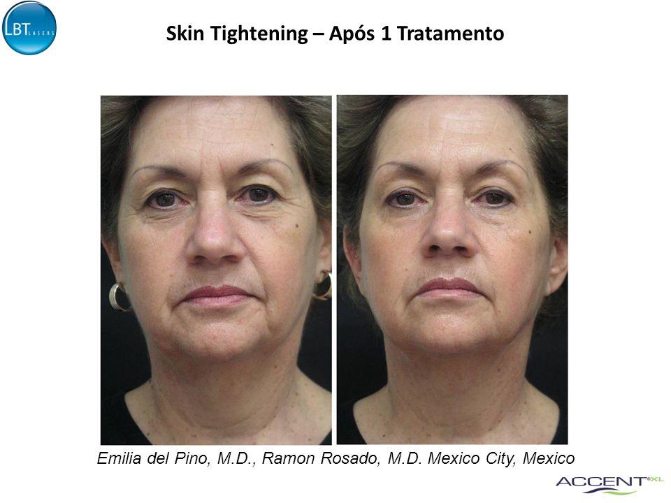 Skin Tightening – Após 1 Tratamento