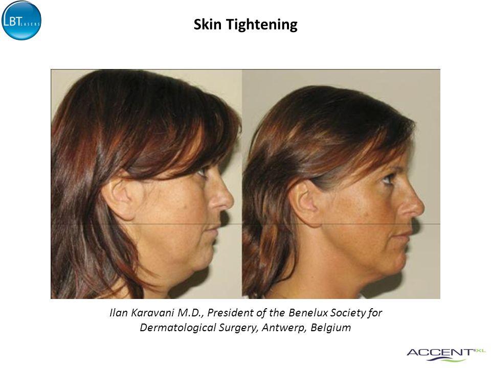 Skin Tightening Ilan Karavani M.D., President of the Benelux Society for.