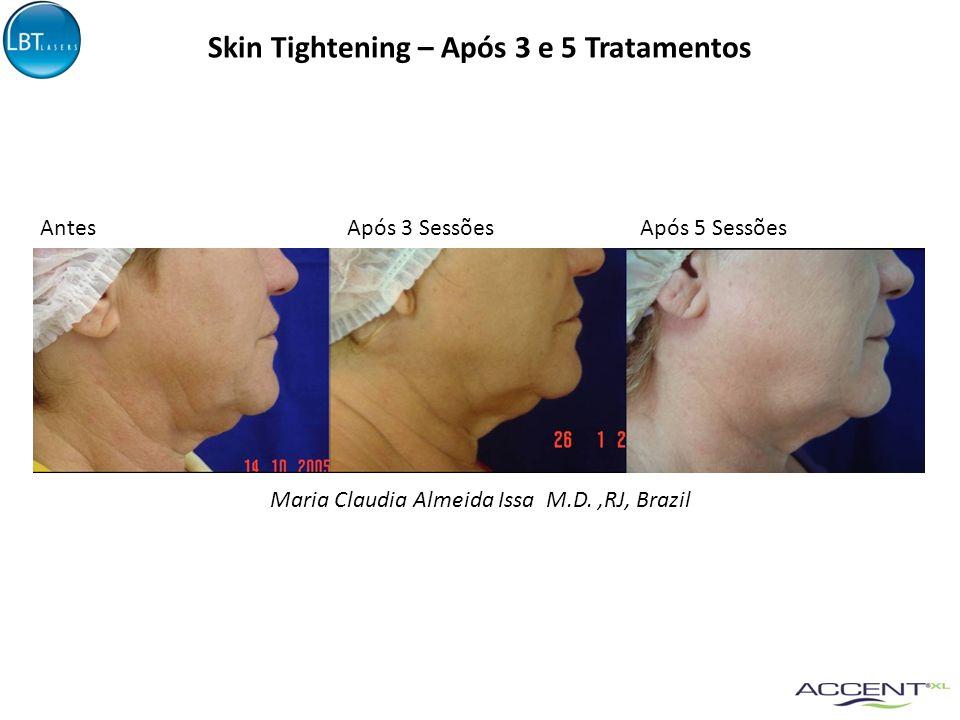 Skin Tightening – Após 3 e 5 Tratamentos