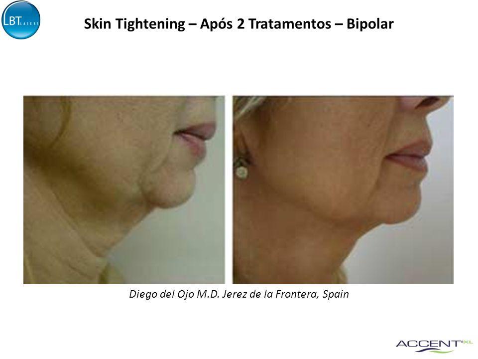Skin Tightening – Após 2 Tratamentos – Bipolar