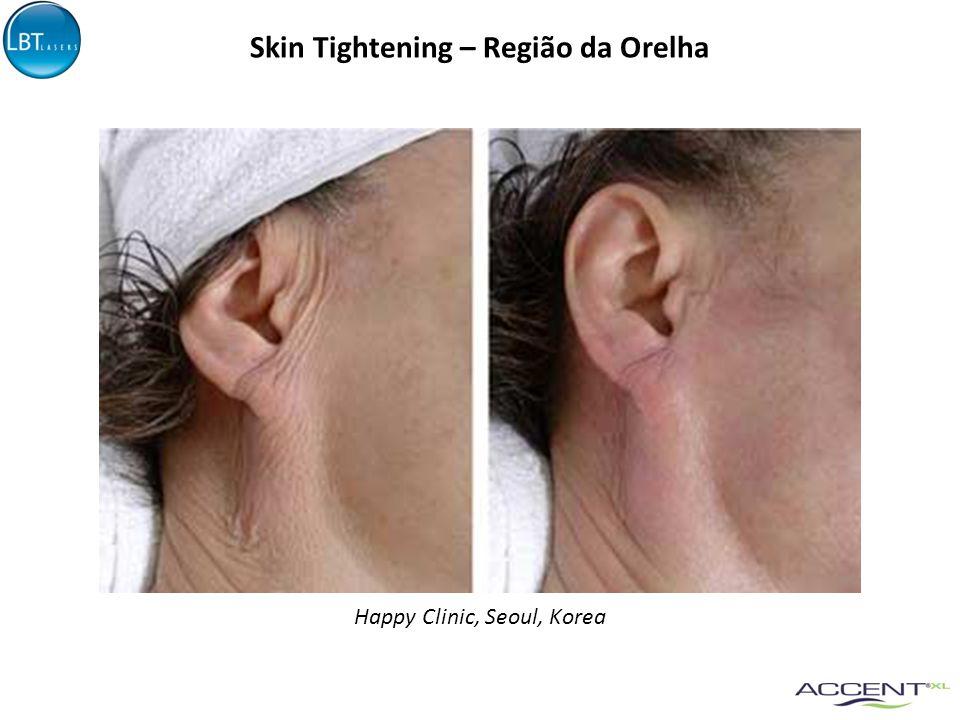 Skin Tightening – Região da Orelha