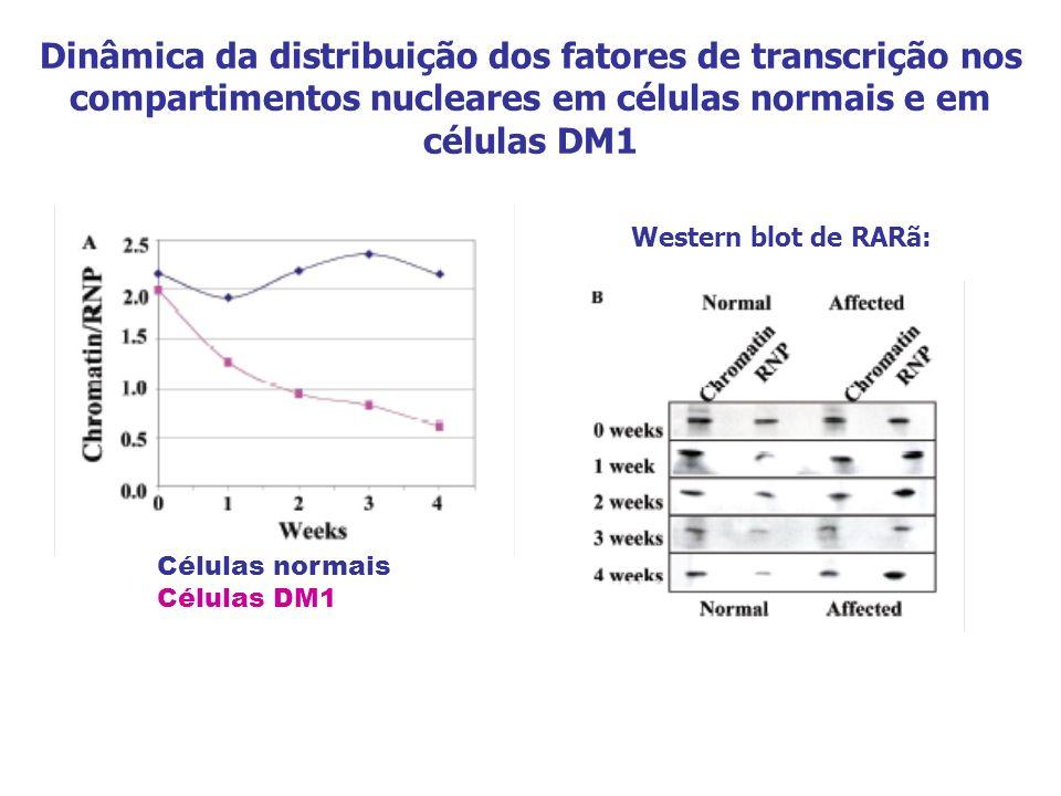 Dinâmica da distribuição dos fatores de transcrição nos compartimentos nucleares em células normais e em células DM1