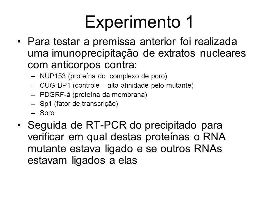 Experimento 1 Para testar a premissa anterior foi realizada uma imunoprecipitação de extratos nucleares com anticorpos contra: