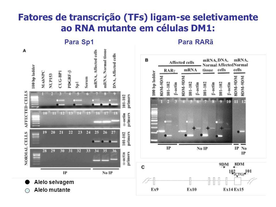 Fatores de transcrição (TFs) ligam-se seletivamente ao RNA mutante em células DM1: