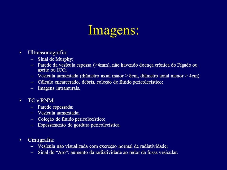 Imagens: Ultrassonografia: TC e RNM: Cintigrafia: Sinal de Murphy;
