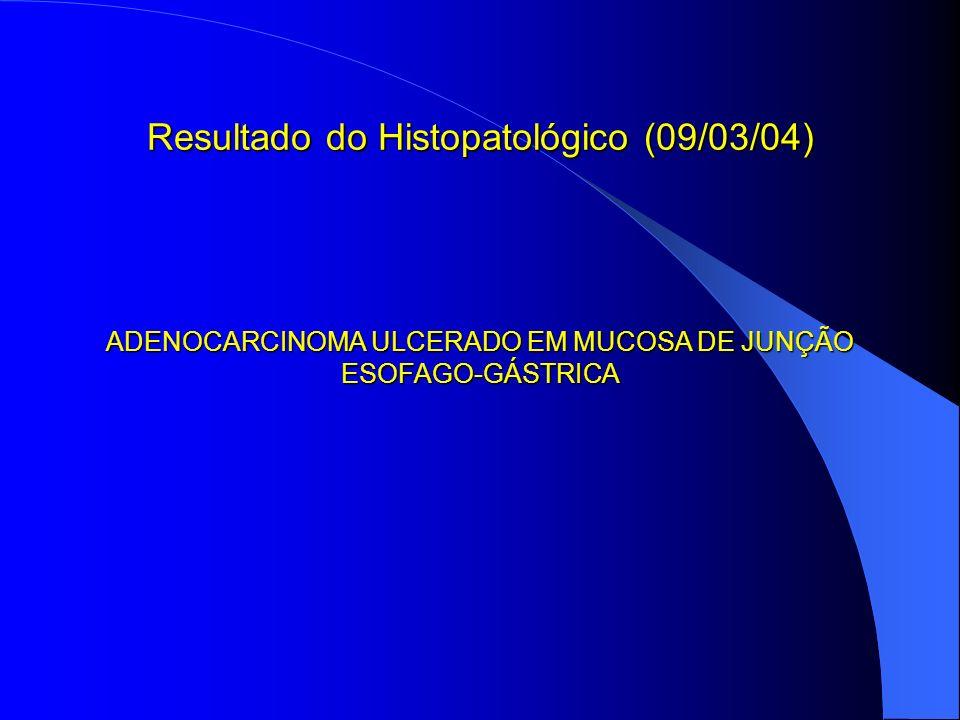 Resultado do Histopatológico (09/03/04)