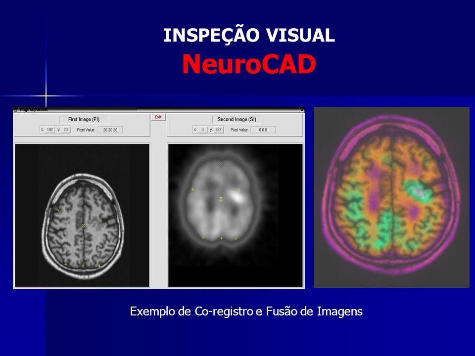 INSPEÇÃO VISUAL NeuroCAD