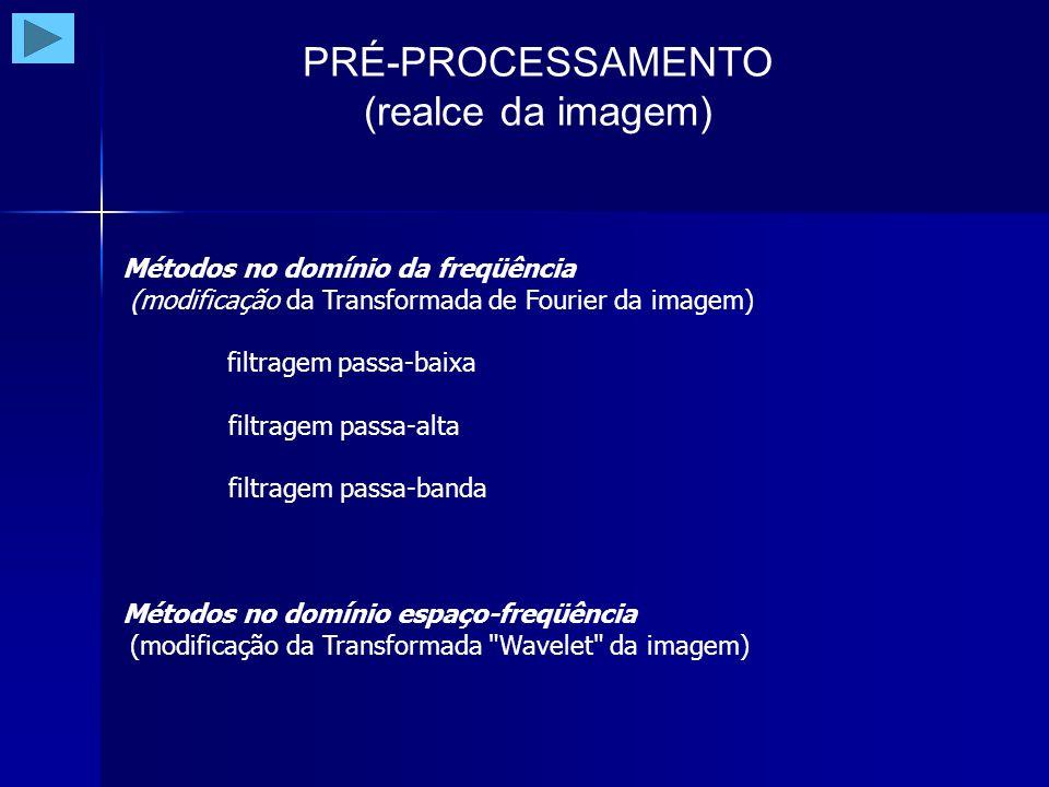 PRÉ-PROCESSAMENTO (realce da imagem) Métodos no domínio da freqüência