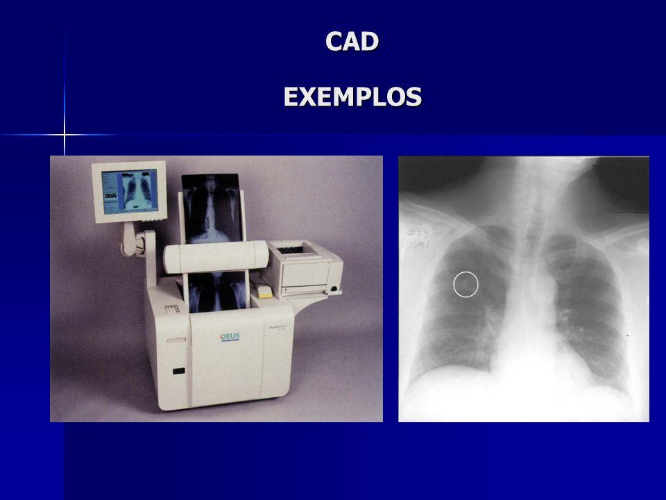 CAD EXEMPLOS