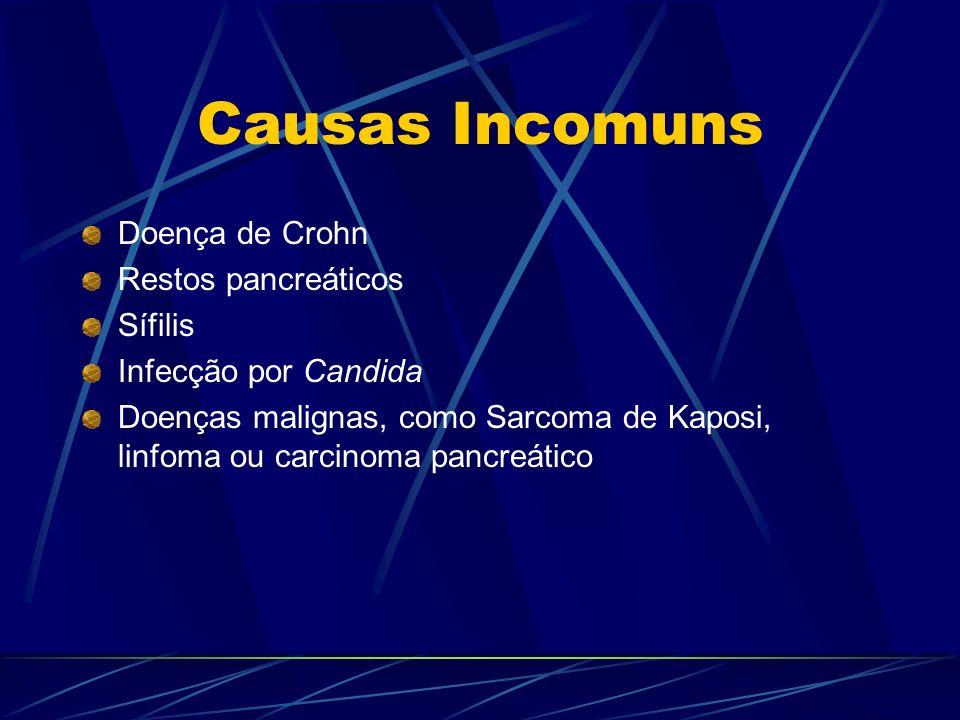 Causas Incomuns Doença de Crohn Restos pancreáticos Sífilis