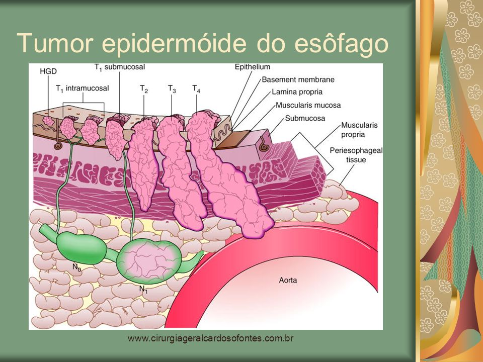 Tumor epidermóide do esôfago