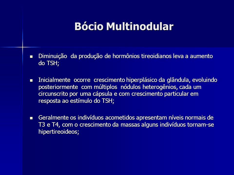 Bócio Multinodular Diminuição da produção de hormônios tireoidianos leva a aumento do TSH;