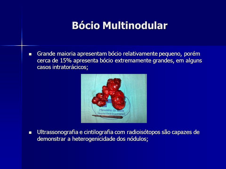 Bócio Multinodular