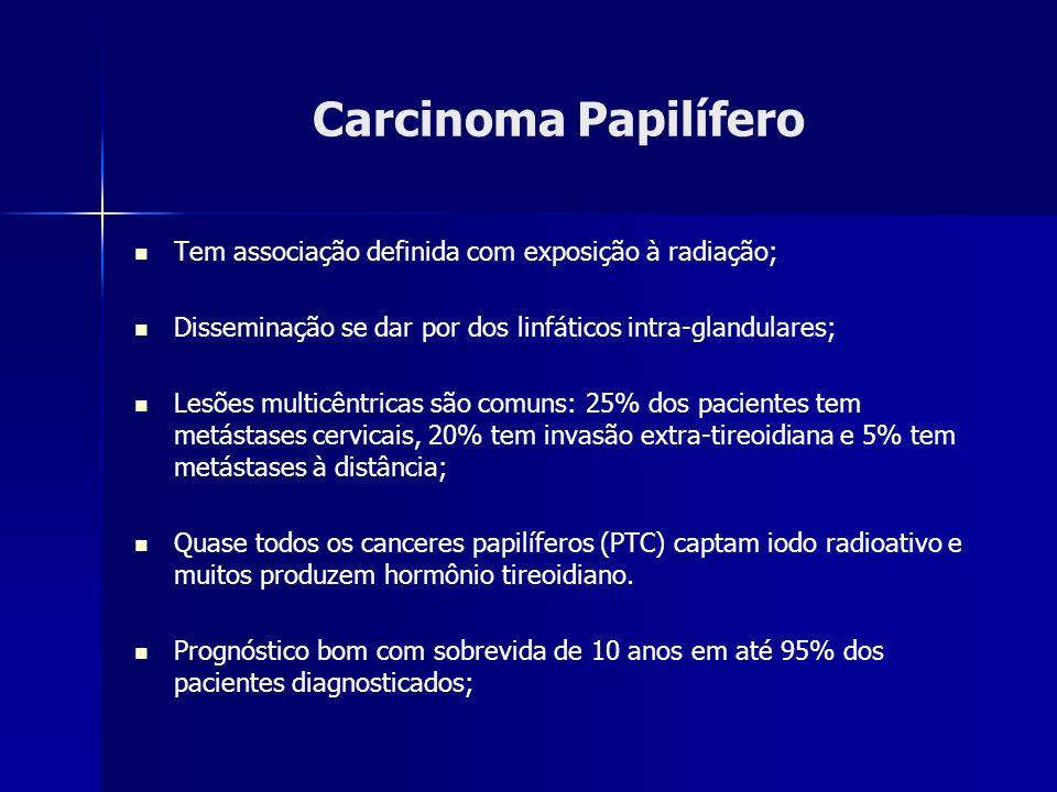 Carcinoma Papilífero Tem associação definida com exposição à radiação;