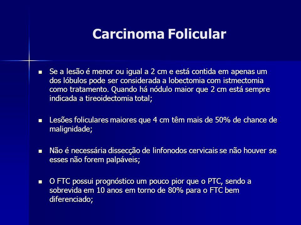 Carcinoma Folicular