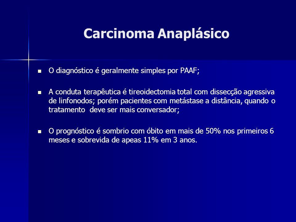 Carcinoma Anaplásico O diagnóstico é geralmente simples por PAAF;