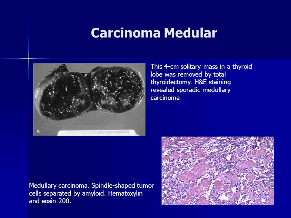 Carcinoma Medular This 4-cm solitary mass in a thyroid lobe was removed by total thyroidectomy. H&E staining revealed sporadic medullary carcinoma.