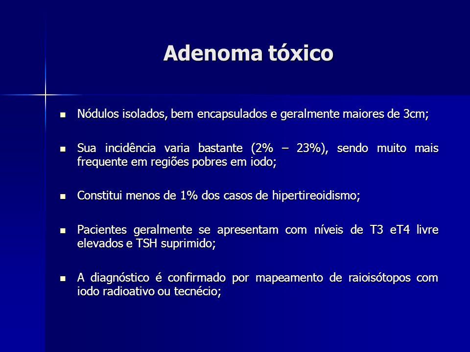 Adenoma tóxico Nódulos isolados, bem encapsulados e geralmente maiores de 3cm;