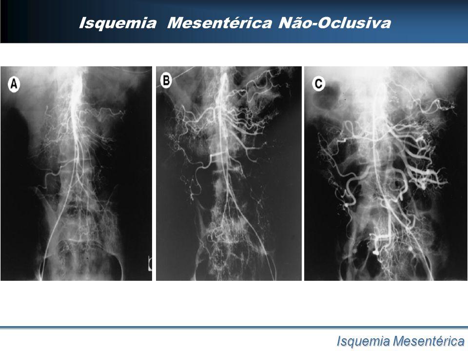 Isquemia Mesentérica Não-Oclusiva