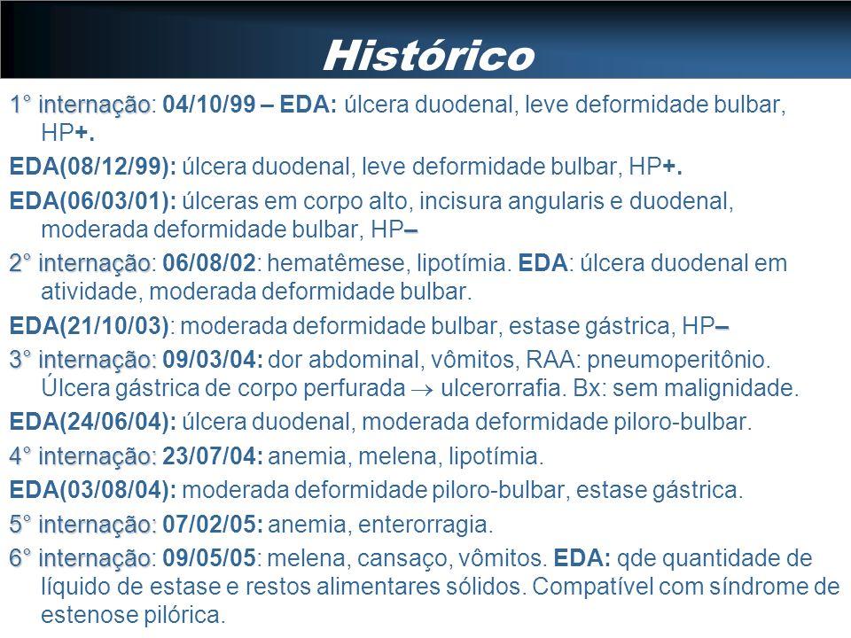 Histórico1° internação: 04/10/99 – EDA: úlcera duodenal, leve deformidade bulbar, HP+. EDA(08/12/99): úlcera duodenal, leve deformidade bulbar, HP+.