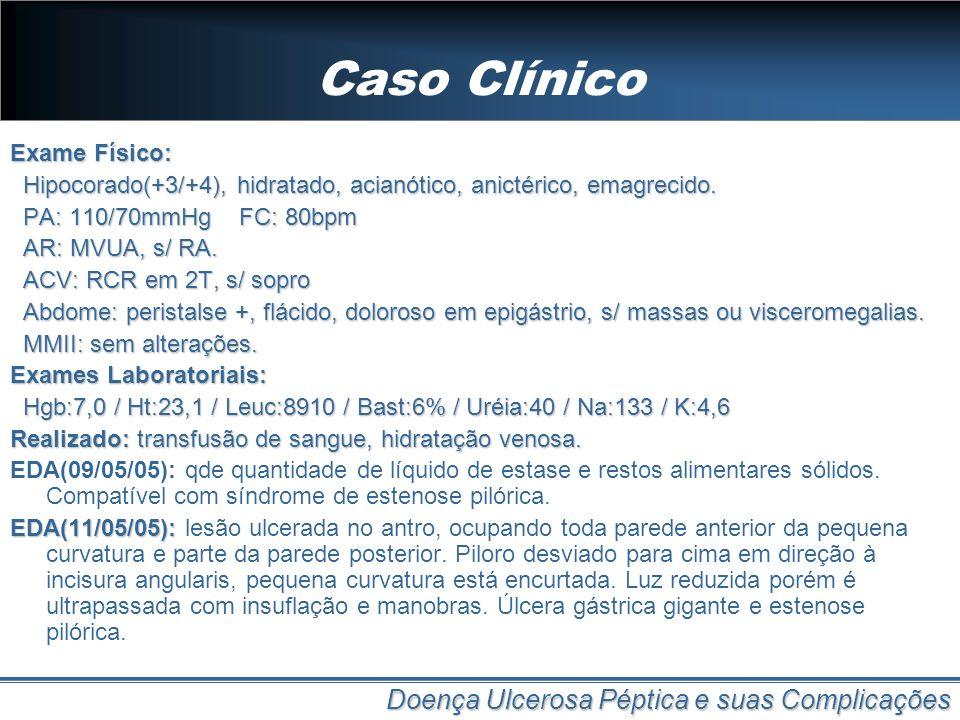 Caso Clínico Doença Ulcerosa Péptica e suas Complicações Exame Físico: