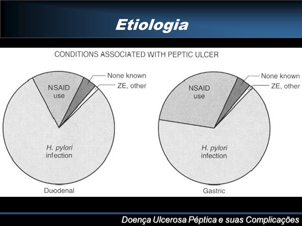 Etiologia Doença Ulcerosa Péptica e suas Complicações