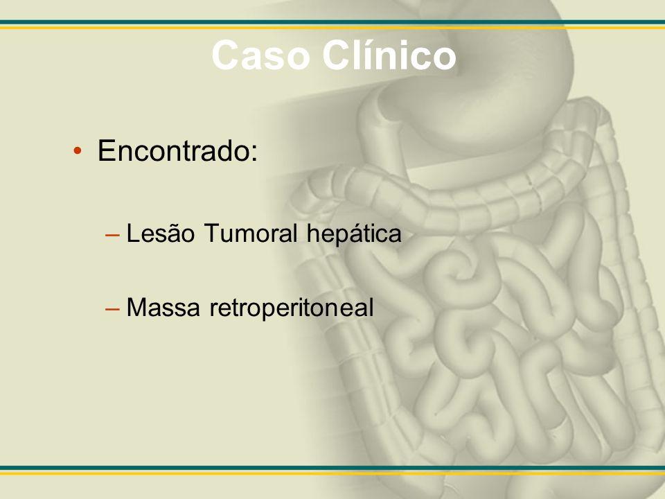 Caso Clínico Encontrado: Lesão Tumoral hepática Massa retroperitoneal