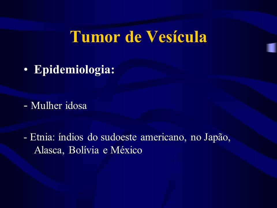 Tumor de Vesícula Epidemiologia: - Mulher idosa