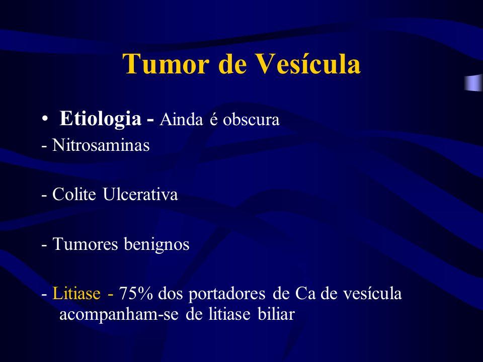 Tumor de Vesícula Etiologia - Ainda é obscura - Nitrosaminas