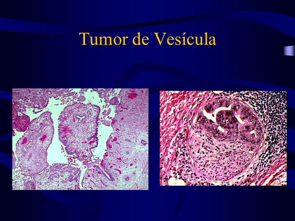 Tumor de Vesícula