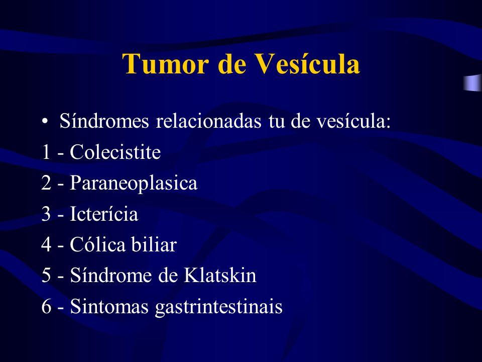 Tumor de Vesícula Síndromes relacionadas tu de vesícula: