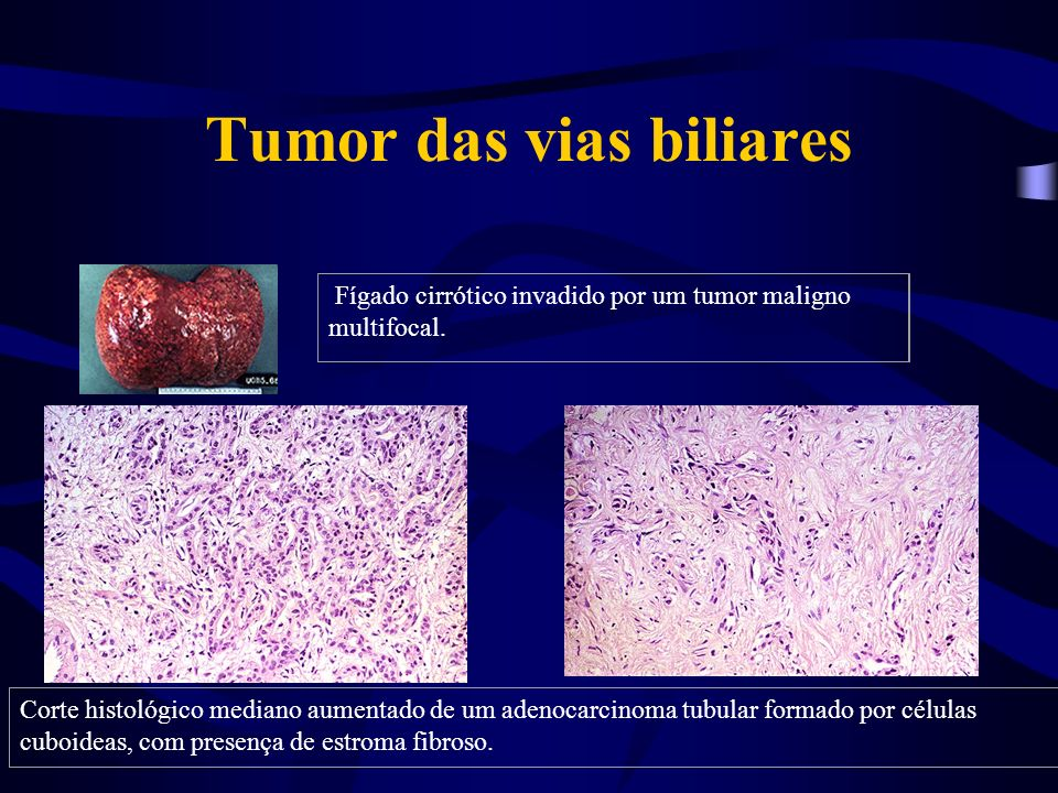Tumor das vias biliares