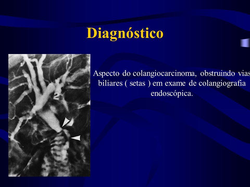 Diagnóstico Aspecto do colangiocarcinoma, obstruindo vias biliares ( setas ) em exame de colangiografia endoscópica.