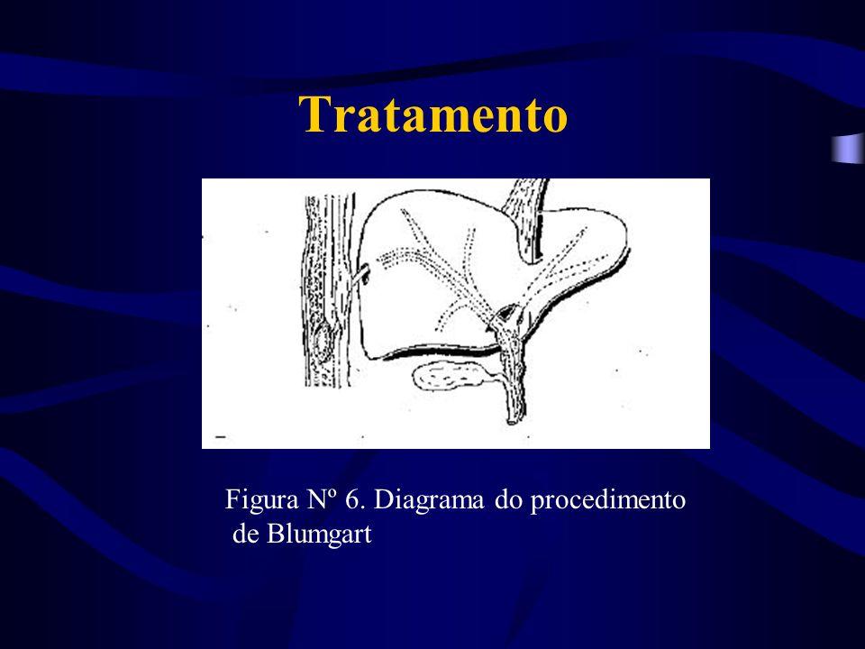 Tratamento Figura Nº 6. Diagrama do procedimento de Blumgart