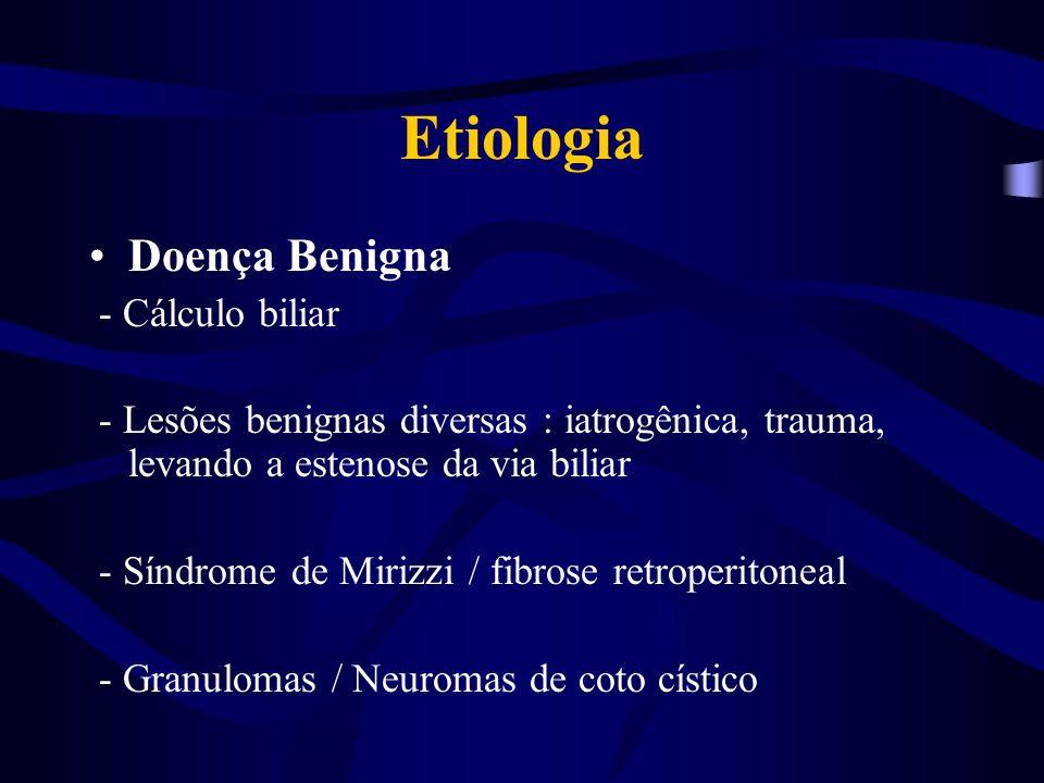 Etiologia Doença Benigna - Cálculo biliar