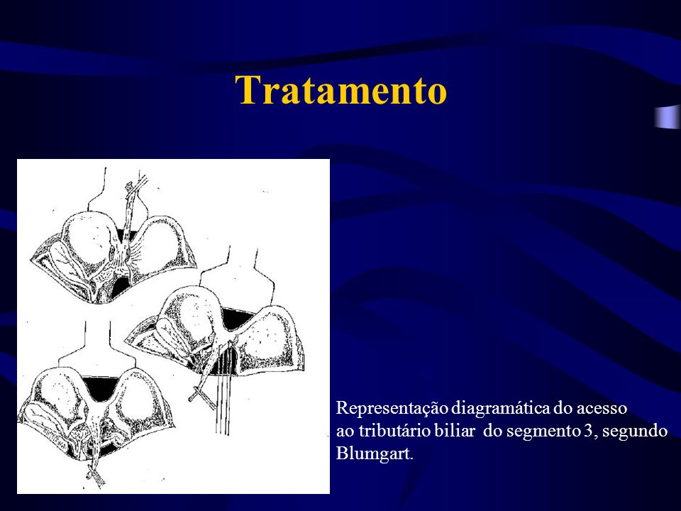 Tratamento Representação diagramática do acesso