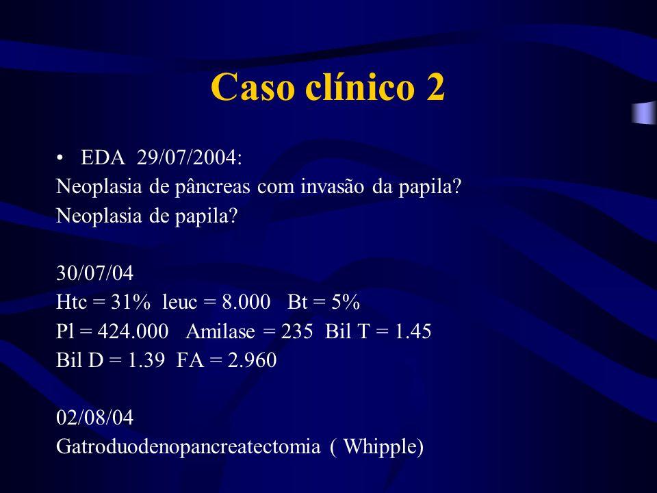 Caso clínico 2 EDA 29/07/2004: Neoplasia de pâncreas com invasão da papila Neoplasia de papila