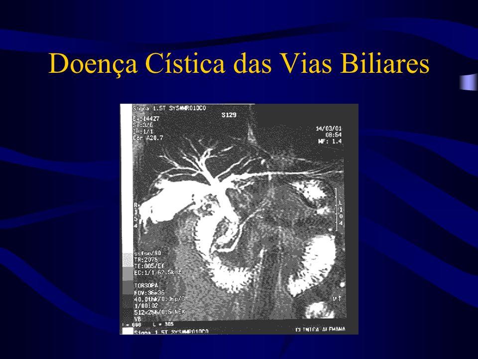 Doença Cística das Vias Biliares