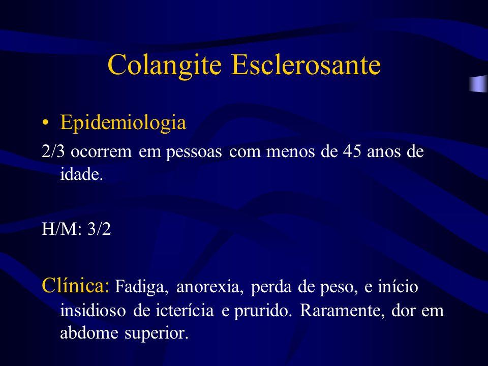 Colangite Esclerosante