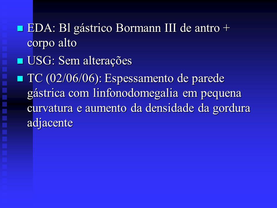 EDA: Bl gástrico Bormann III de antro + corpo alto