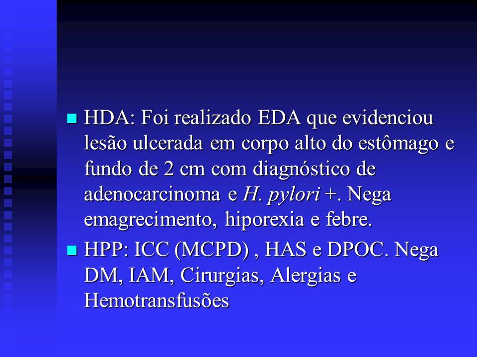 HDA: Foi realizado EDA que evidenciou lesão ulcerada em corpo alto do estômago e fundo de 2 cm com diagnóstico de adenocarcinoma e H. pylori +. Nega emagrecimento, hiporexia e febre.