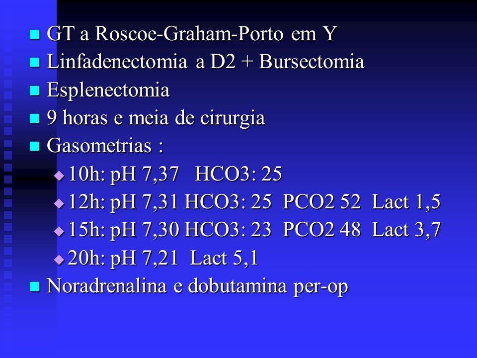 GT a Roscoe-Graham-Porto em Y