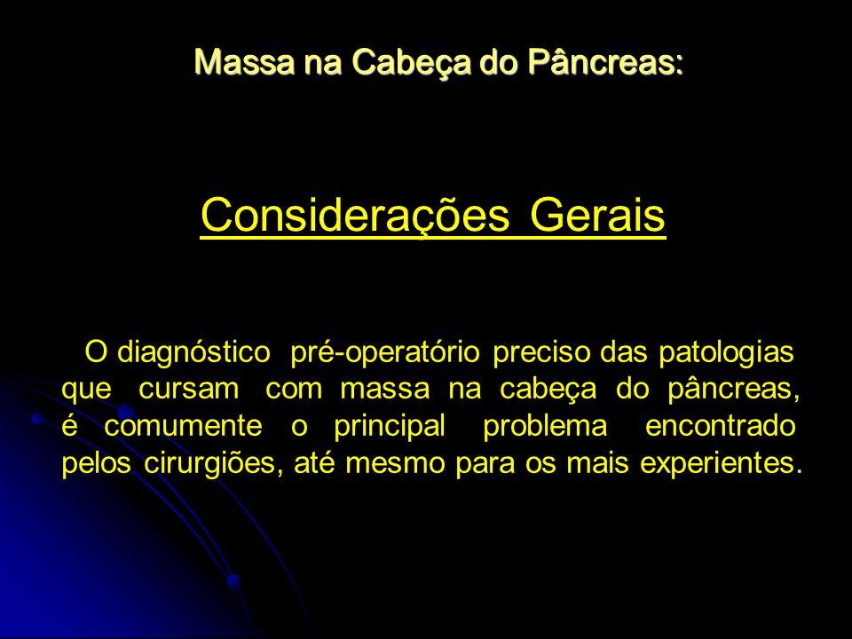 Considerações Gerais Massa na Cabeça do Pâncreas: