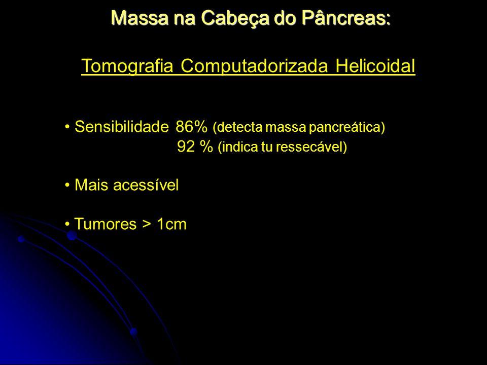 Tomografia Computadorizada Helicoidal