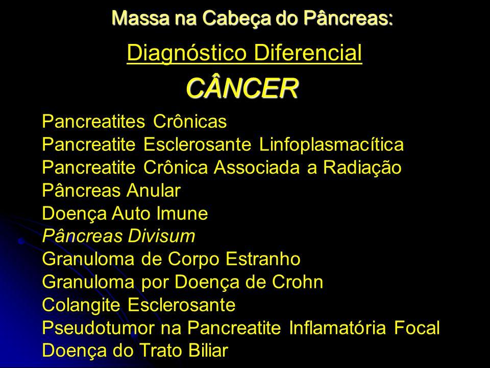 CÂNCER Diagnóstico Diferencial Massa na Cabeça do Pâncreas: